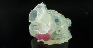 3D Printed Surgical product