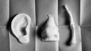 3D Printing services For Medical Industry